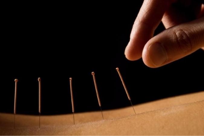 acupuncture-2.jpg