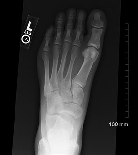 Talus inMotion Foot and Ankle | Podiatrist | Scottsdale | Phoenix | Arizona | X-ray | Conditions and Treatments | Foot Fracture