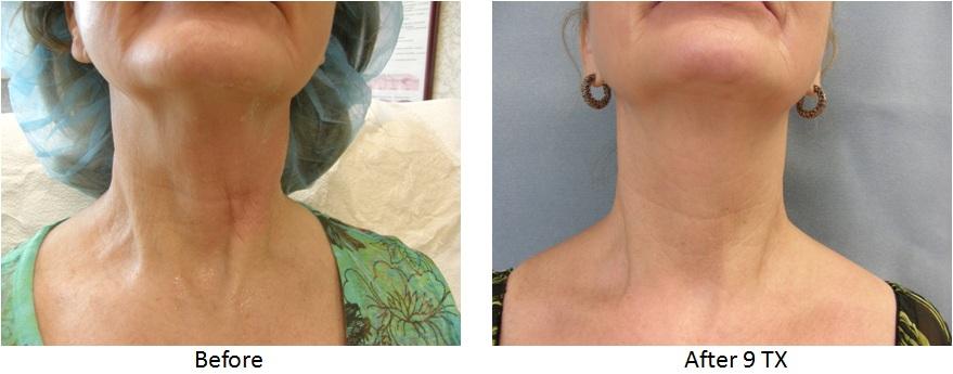 viora+neck.jpg
