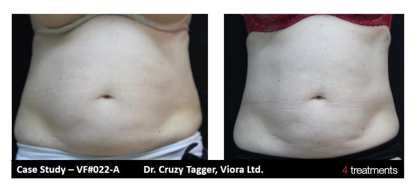 v-form-belly.jpg