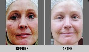 Omni Technology Facial