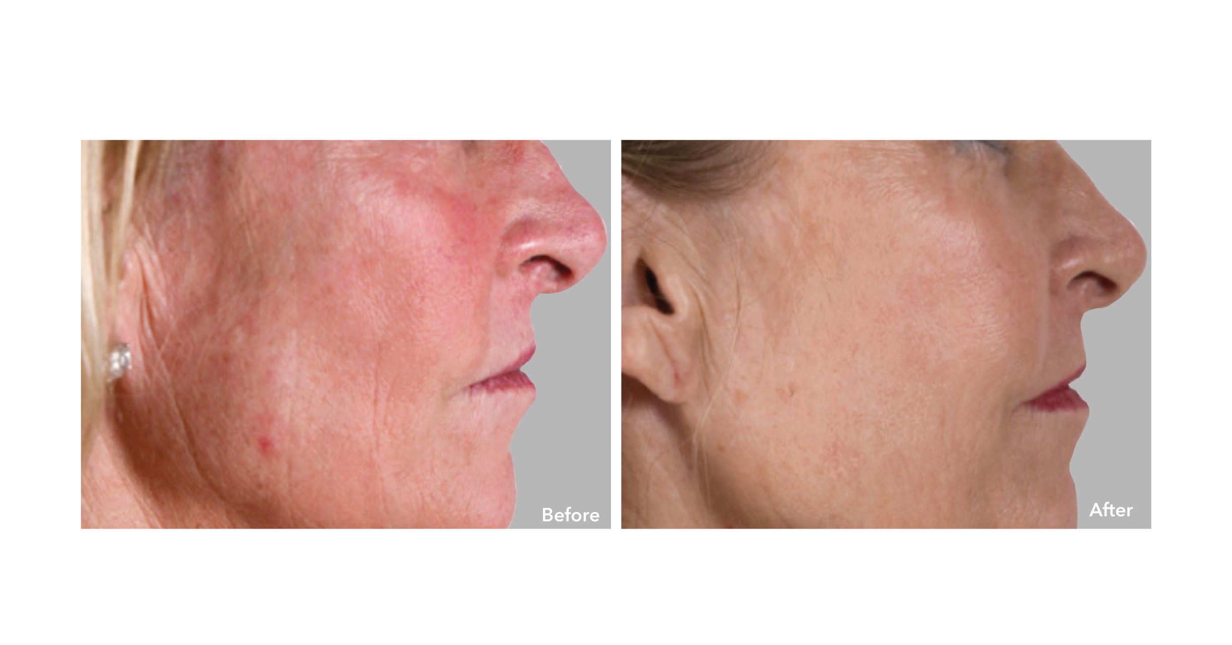 AnteAGE Stem Cell Facial