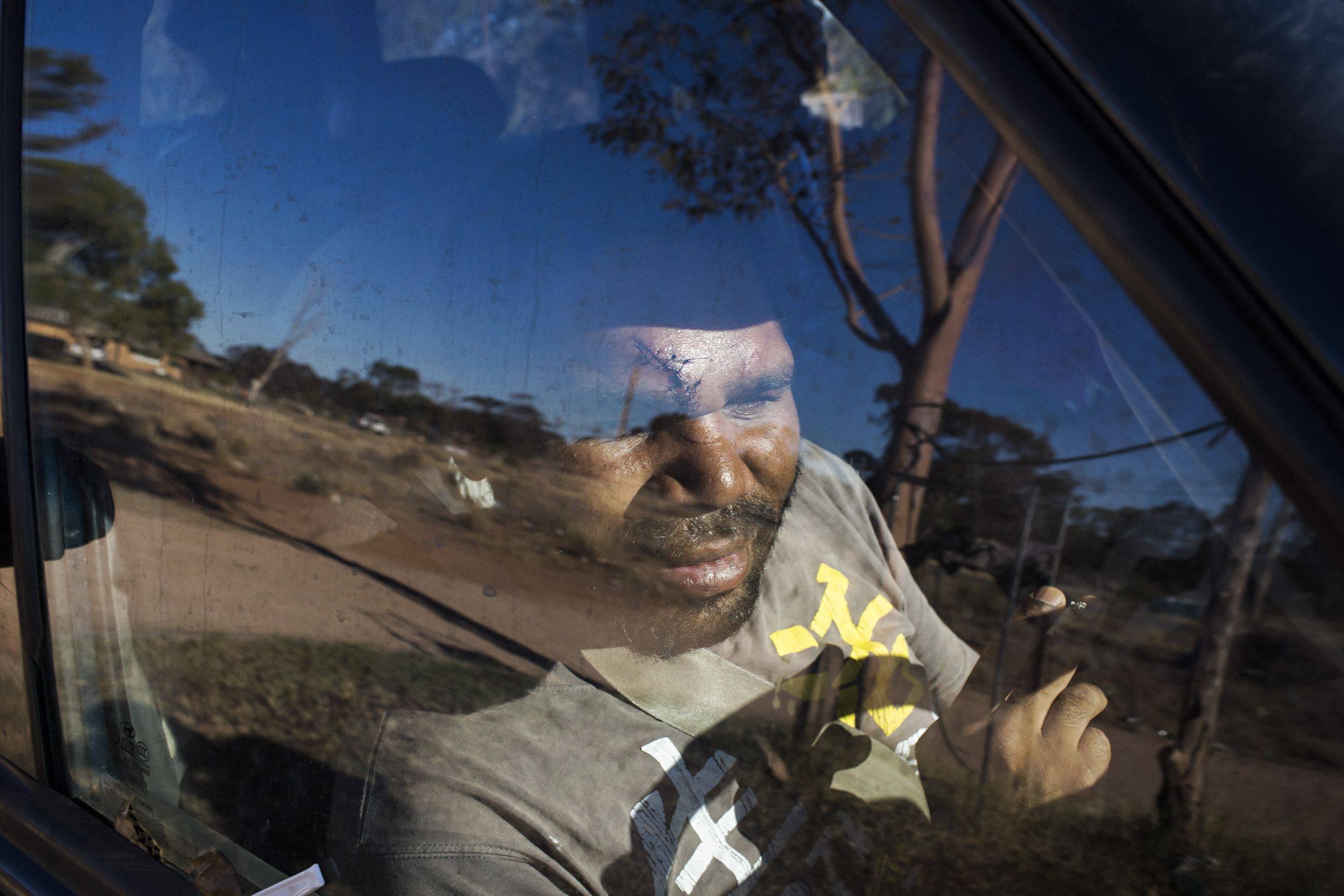 Eight stitches across the forehead after a drunken altercation the night before in Wilcannia, NSW.