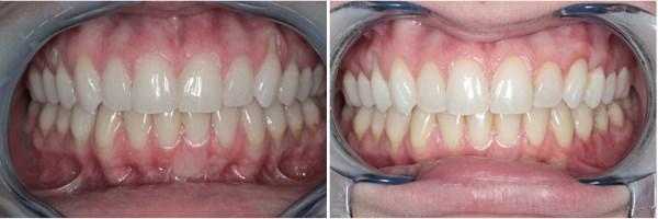 "This otherwise healthy 23 year old presented to our office with advanced gingival recession on her side and back teeth. She had recently started dating and her boyfriend mention that she should get it ""checked out before she starts losing her teeth."" We determined that it would be prudent to treat her left side first, as this side has more recession and exposed roots than does her right side. The ""before and after"" photographs seen below are the results at her two week visit following connective tissue grafting. We plan to treat her right side next month."