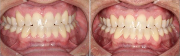 A 39 year old healthy male from Pleasant Grove, Utah presented with localized recession on his upper eye teeth (canines) that is sensitive and unsightly for him. The recession was treated with connective tissue grafting which resulted in complete coverage of his exposed root surfaces.