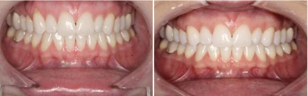 "This 28 year old female from Lehi, Utah presents with gum recession on her upper canines which are extremely sensitive.  After discussing her grafting options, she elected to have her recession treated with Connective tissue.  The ""After"" photograph was taken 6 weeks after treatment."