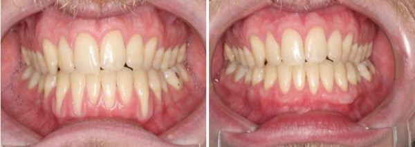 "This 27 year old male from Price, Utah has a history of being pretty aggressive with his brushing.  The results seen below are only possible through Connective Tissue Grafting.  While there are several grafting techniques and substitute materials available today, Connective Tissue remains the ""Gold Standard""."