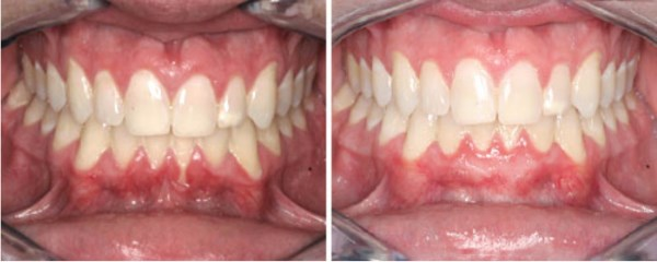 This 22 year-old Vernal, Utah male suffers from no attached gum tissue and 4 mm of gum recession on his lower front tooth. He complains of tenderness especially to toothbrushing and touch. In the photograph on the right we see his results following a Connective Tissue Graft. The gum recession and attachment have been completely resolved!