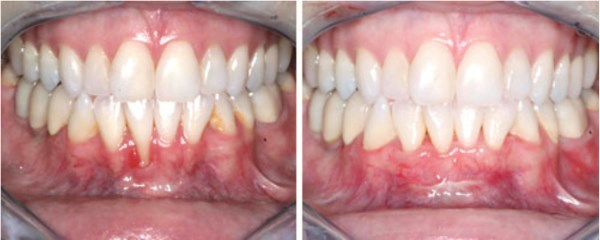 "This 36 year-old female from Roosevelt, Utah presents with gum recession on her lower front tooth which is resulting in dental hypersensitivity. She reports that drinking and eating are becoming an ""uncomfortable challenge"".  Her before and after photographs reveal the result of her grafting procedure four weeks after treatment. AWESOME!"