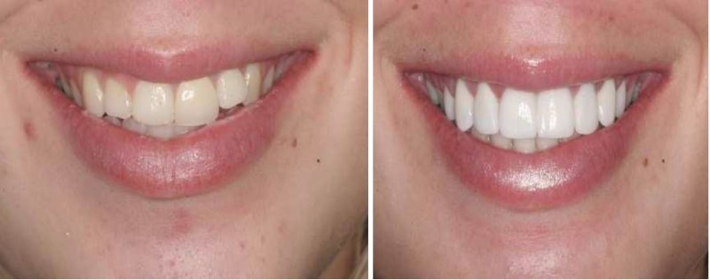 This 23 year old female presents with two complaints regarding her smile. She is unhappy with the appearance of her front tooth that was previously restored with a porcelain fused to metal restoration. She feels like her smile is unbalanced.After consulting with her restorative dentist regarding our findings and the patient's desires, we presented the following treatment plan: a hard tissue crown lengthening on her right side to match the length that she has on the left followed by veneers on teeth #4-13.