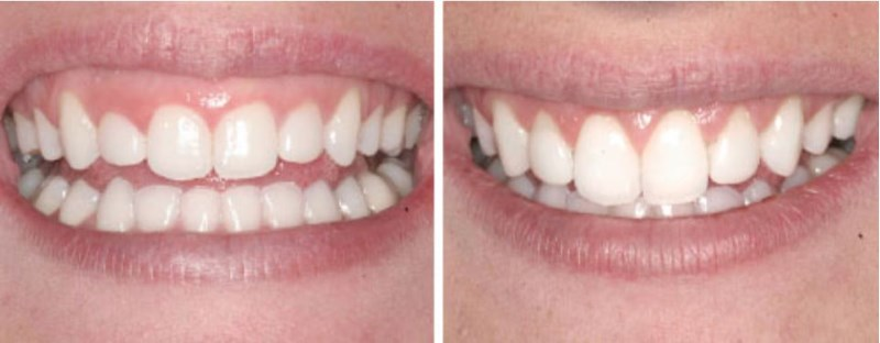 """This 20 year-old dental assistant from Orem, Utah is around beautiful smiles everyday and desires to have one for herself. She is aware that in order to improve upon the appearance of her smile (which by the way she has already had porcelain veneers placed upon her upper front four teeth) she needed to """"even out"""" her gum line. Again we see what is possible by reshaping the supporting tissues (bone and gums) in the creation of a fabulous smile!"""