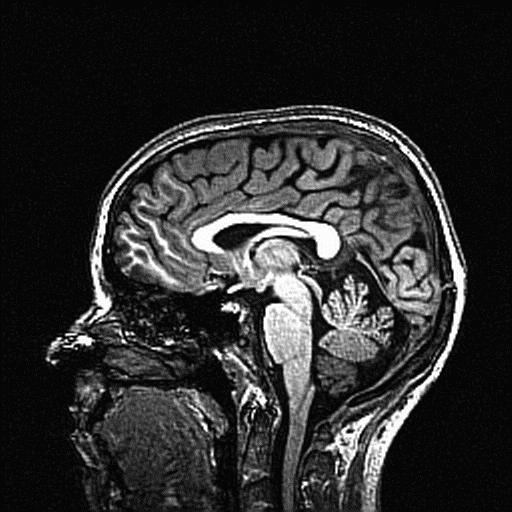 PhenoTypSub22_brain_background_T1.png