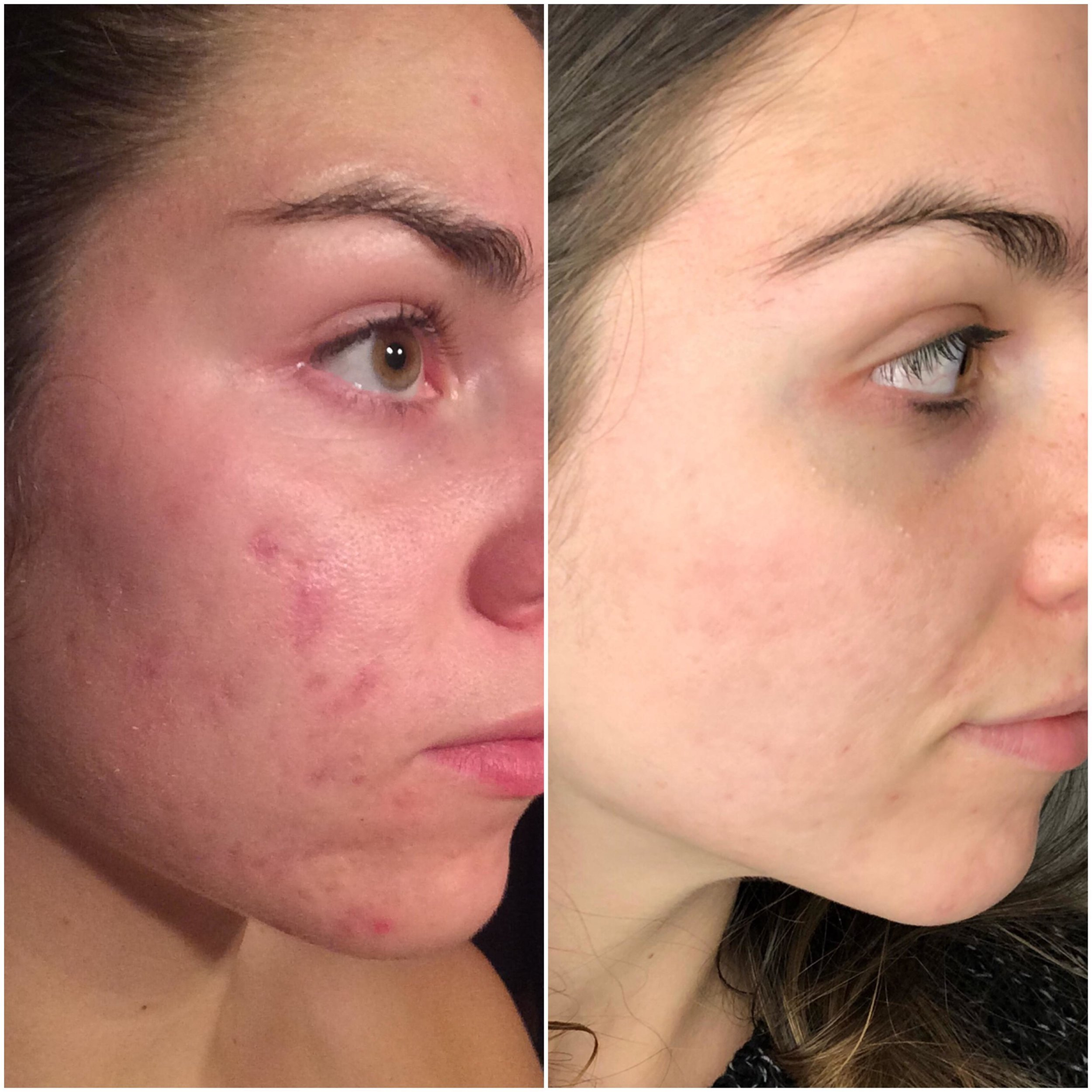 This is an unconventional before and after - Ya'll it's not perfect. But my face doesn't hurt constantly and now what I'm working on most is scars. Blog post coming soon.