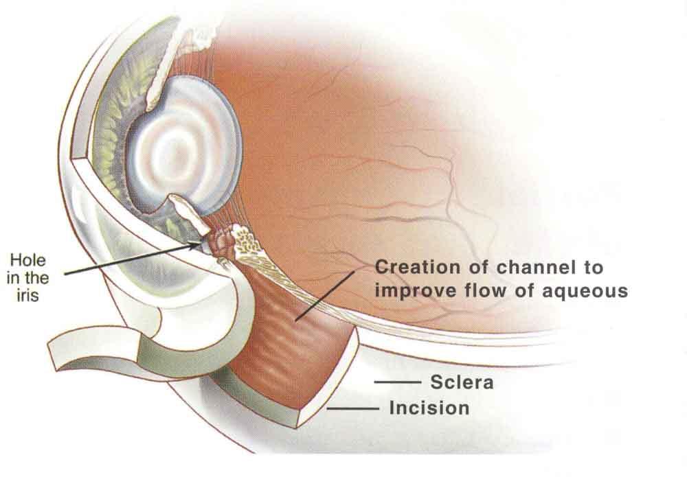 glaucoma_large.jpg