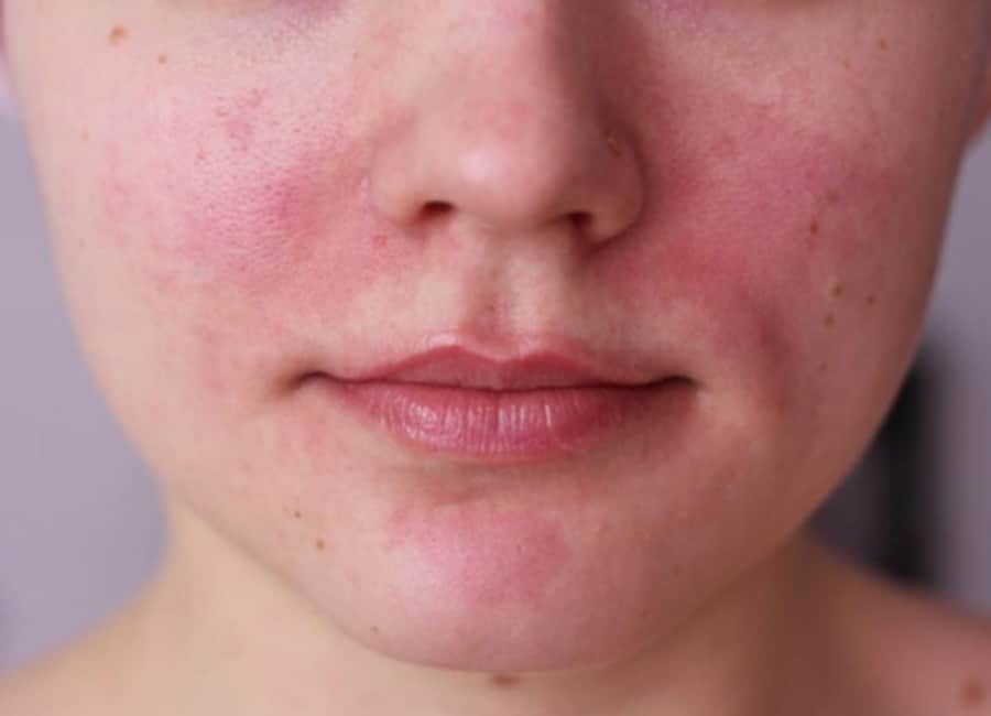 Rosacea symptoms include redness, red pimples, broken capillaries, irritated eyes and thicker than usual skin.