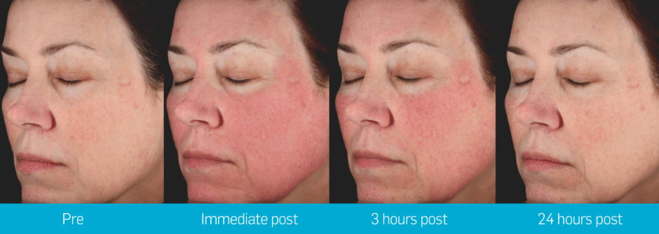 picosure_face_transition_002-940x335.jpg