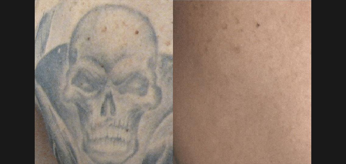 BA_PicoSure_Hall-Plastic-Surgery_Post4Tx_Tattoo.jpg