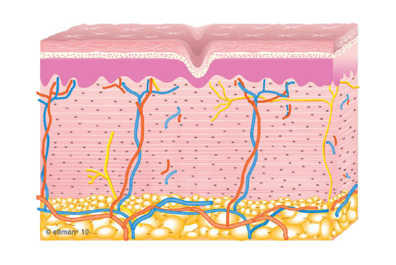 3. Collagen Remodeling Occurs