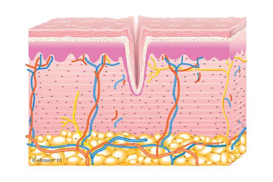 1. Untreated Skin