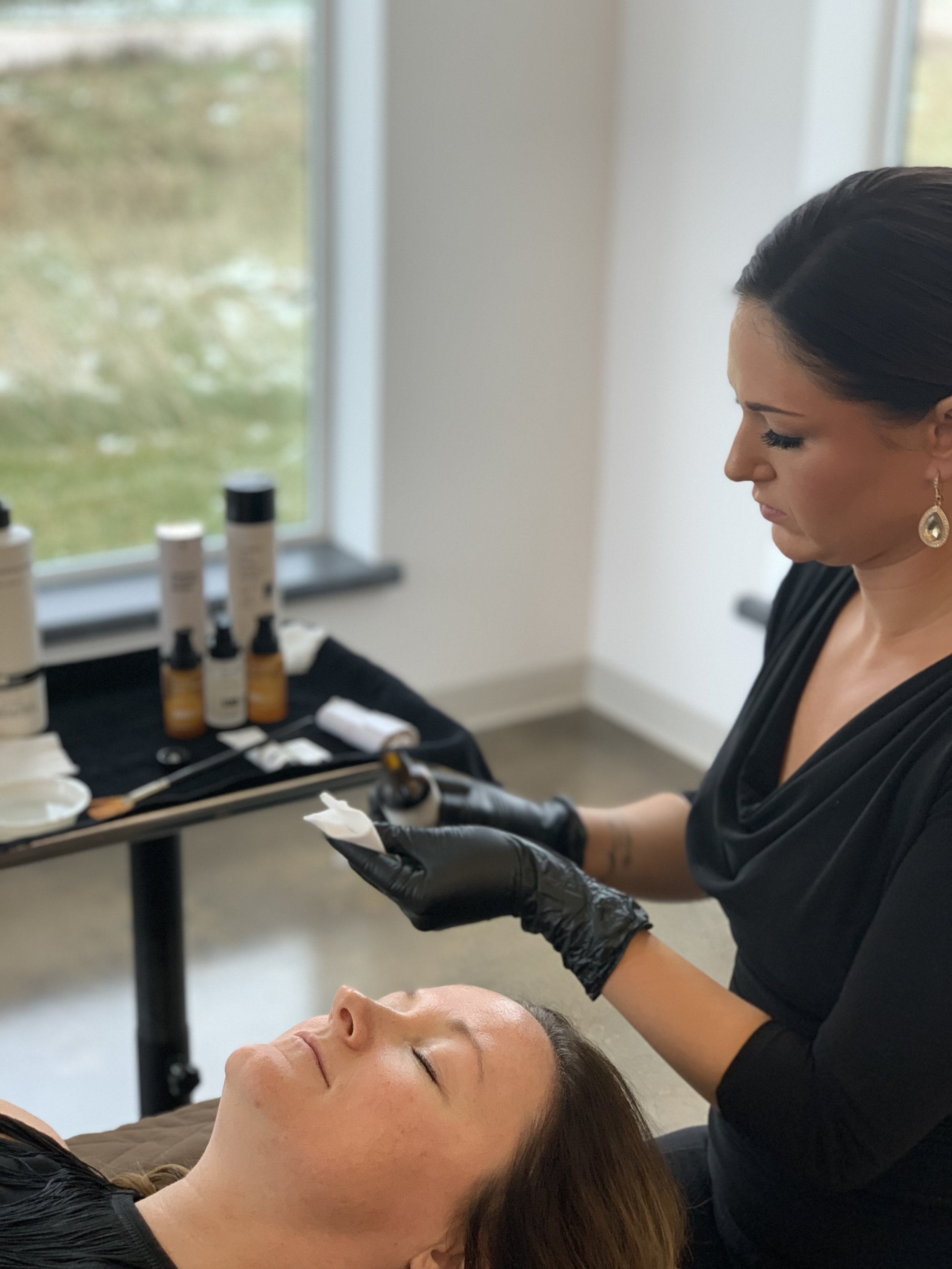 What is a chemical peel? - Peeling is a form of exfoliation, or shedding of dead or damaged surface cells to reveal new, healthy skin cells on the surface.As an added benefit, PCA peels deliver maximum results without any downtime.