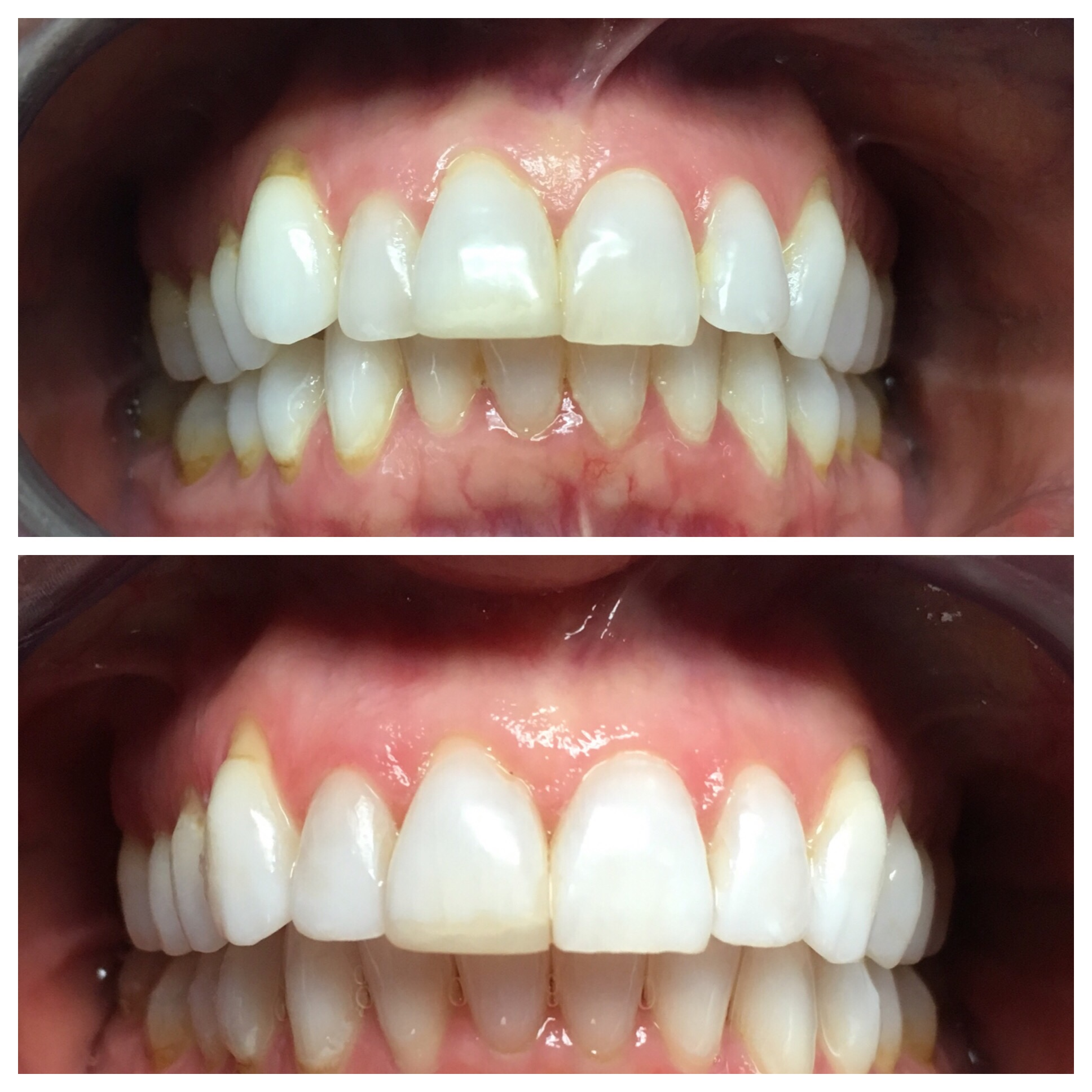 This patient was treated in under 12 months