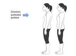 Common Postnatal Posure