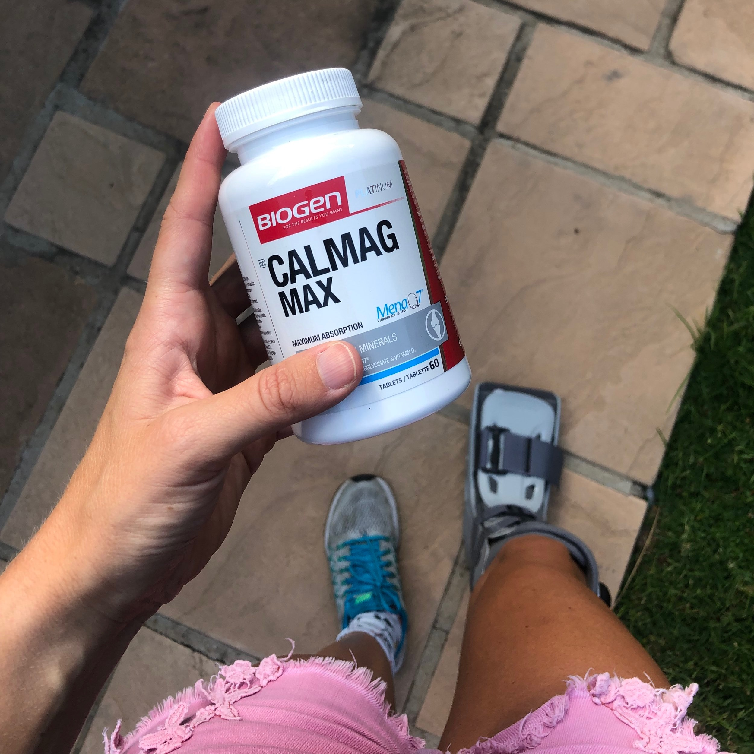 Stress Fracture - Getting to the root of the problem! — CARLA MOLINARO