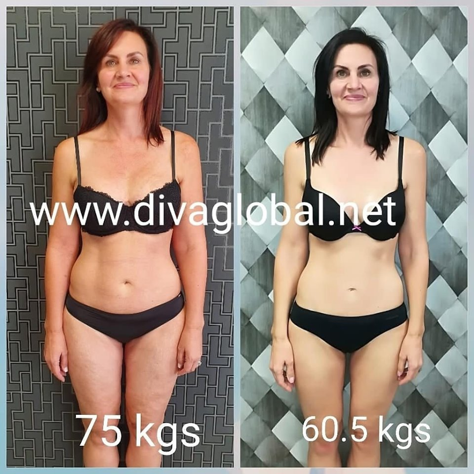 Meet Hanneke - I'm currently 45 years old. I had my first child at the age of 27. I gained 40kg with my pregnancy but have lost all 40 kg and went back to what I was before (60kg). (See photo attached how I looked after my first child) At 41 years of age I had my second child and gained again 40kg. I have been on numerous diets but I struggle to keep my weight off. I'm not currently very active and I'm tired the majority of the time. As I get older everything sag, gained extra weight around my stomach, arms, legs, buttocks and cellulite on legs, stomach and buttocks. I drink my 2 L water a day and I can see it helps a little bit with the appearance of cellulite. I don't wear tight tops or shorts and I'm very self-conscious about my body.I would love to look to regain my self-confidence again and to become active. I know it is a mindset change and I'm ready for it.My weight currently is 74Kg and I'm 1.72m tall.Has reached her goal in losing 15 kgs on a project.
