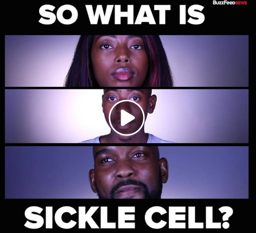 Here's The True Reality People With Sickle Cell Face Everyday -  BuzzFeed