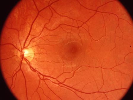 Interested in an eye test? -