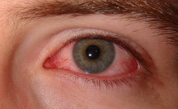 Interested in a dry eye consultation? -