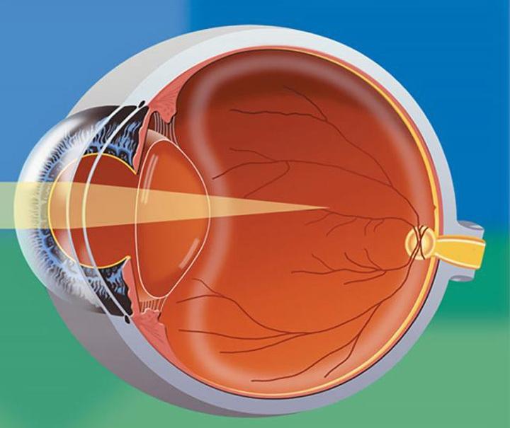Need more information regarding myopia control for children? -