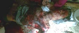 Ami-Bomb-Blast-Images.-Israel-Hate-Crime-e1317442075665.jpg