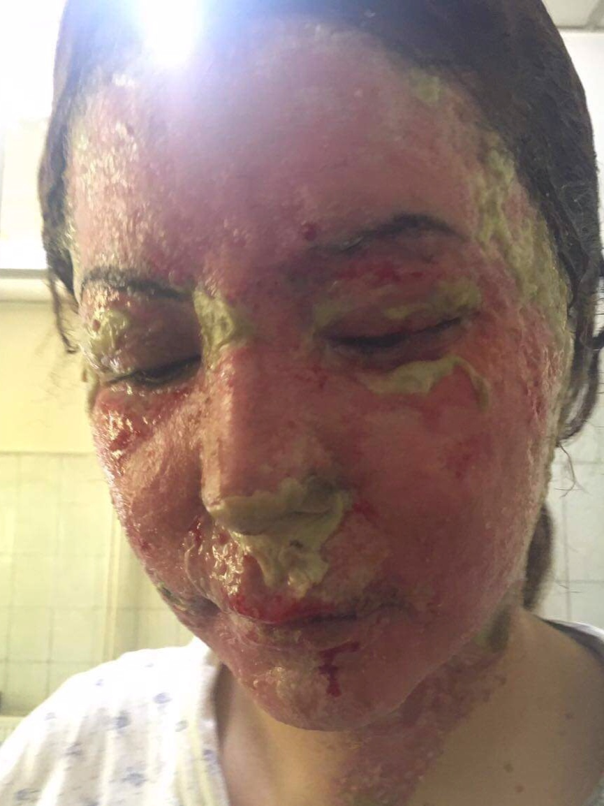 She wouldn't sleep with another man, so he threw acid on her in response, scarring her for life. -