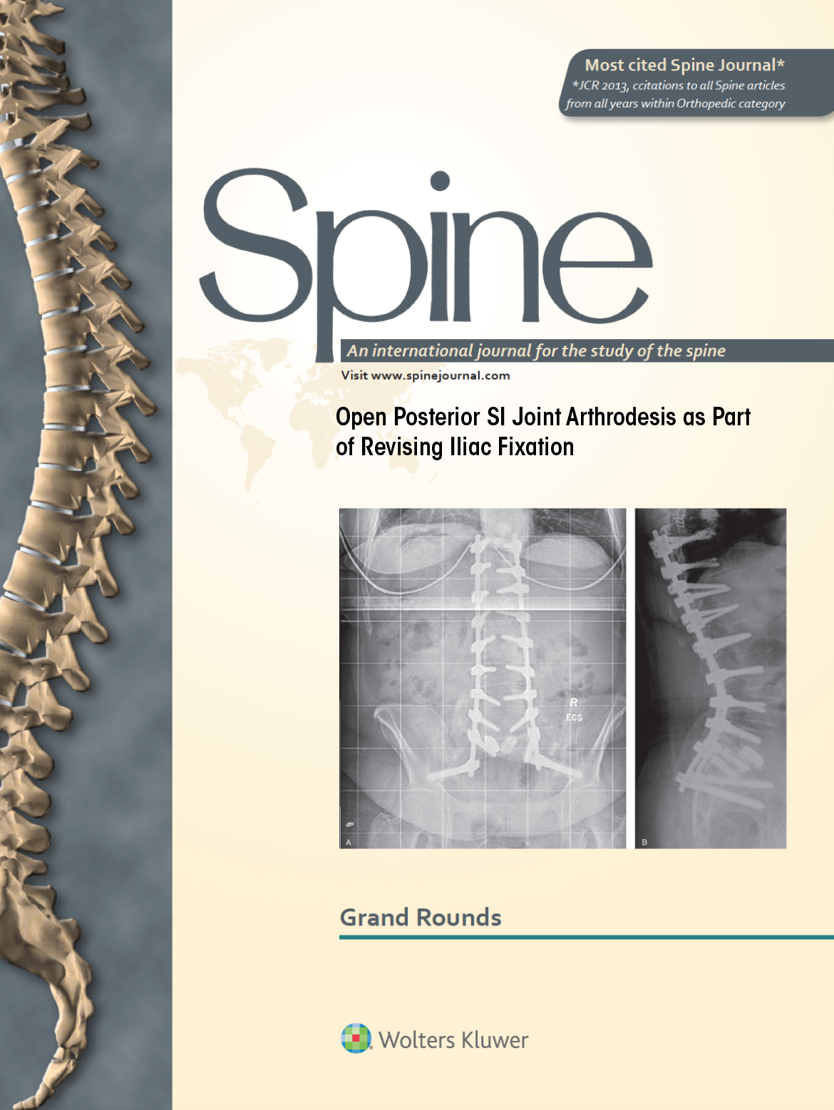 Click the Image to Read the Full Case Study    Open Posterior SI Joint Arthrodesis as Part of Revising Iliac Fixation   Micah Smith, MD