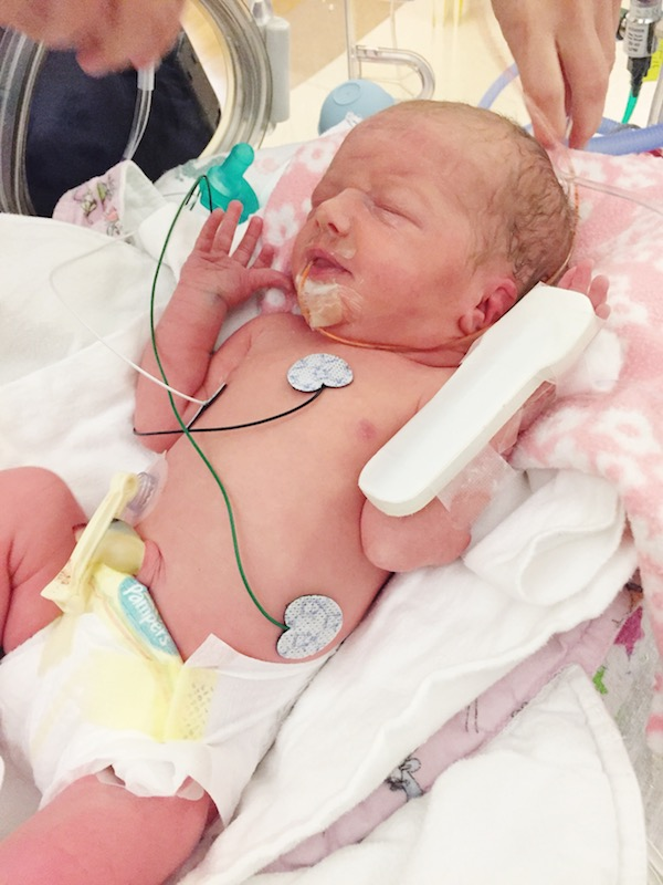 Sweet Sadie after her breathing support had been removed.