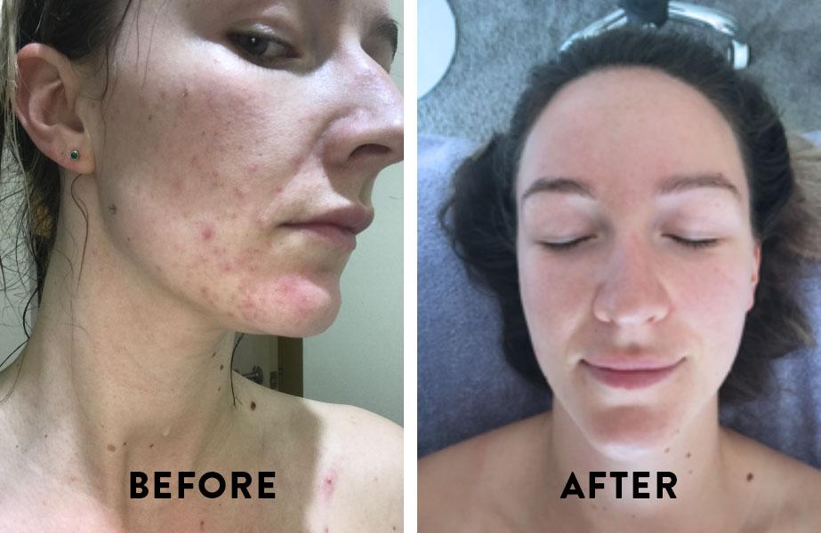 skin-comparision.jpg