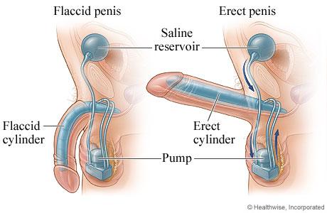 Penile Prosthesis.jpg