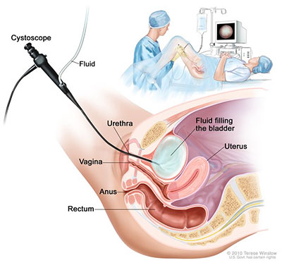 Cystoscopy.jpg