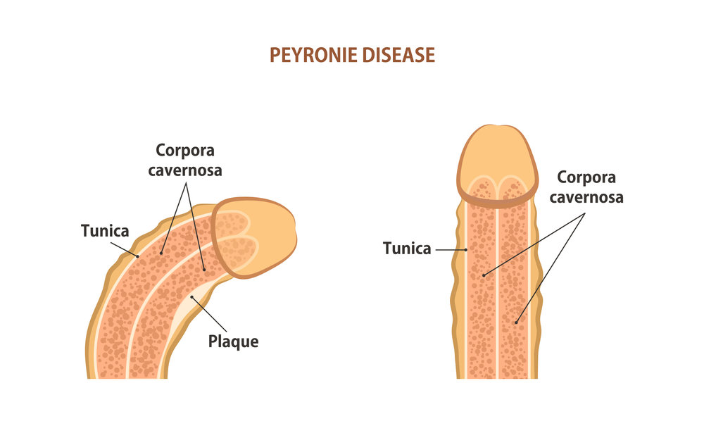 A curved penis bad