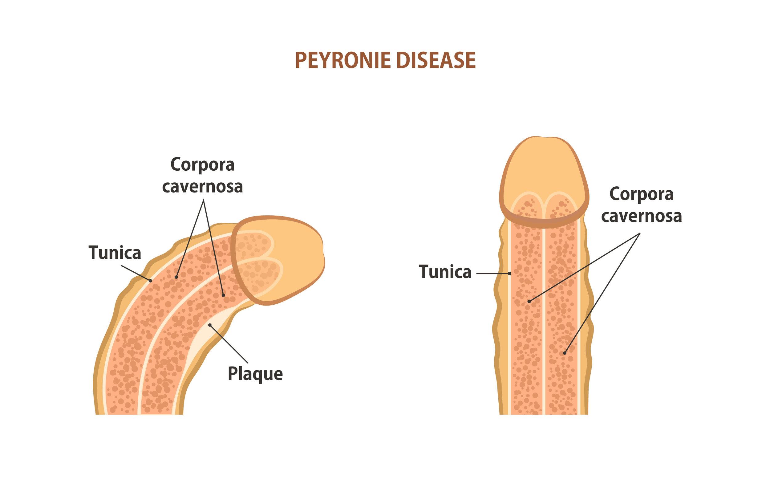 Peyronie's.jpg