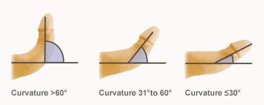 Right penis curved to Is a