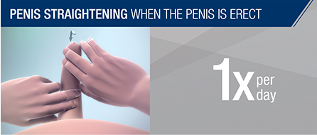 pdpat_pages_how_xiaflex_penile_modeling_straightening.png