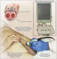 Penile Ultrasound Duplex for Erectile Dysfunction.jpg