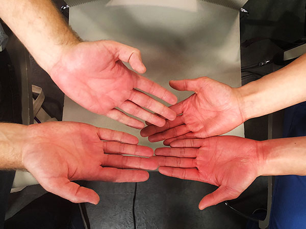 Kaj and Wally's hands after an hour of enthusiastically clapping at a live taping of  The Social .