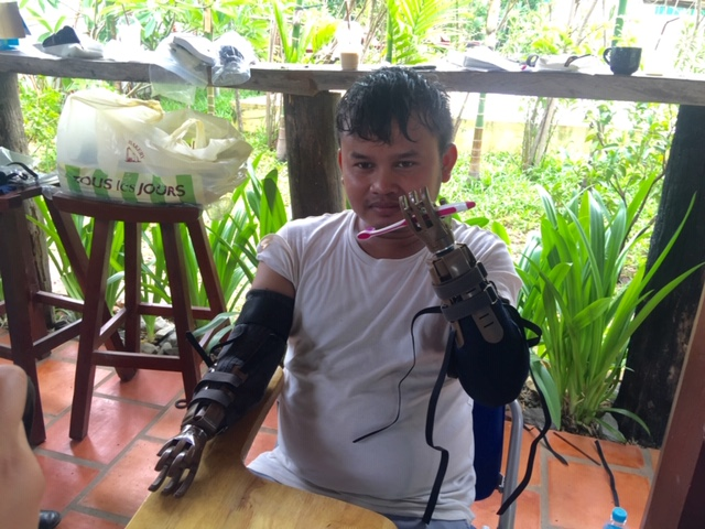 2 LN-4 Prosthetic Hands Offers More Independence