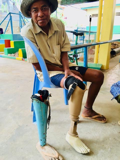 Homemade Prosthetic Leg