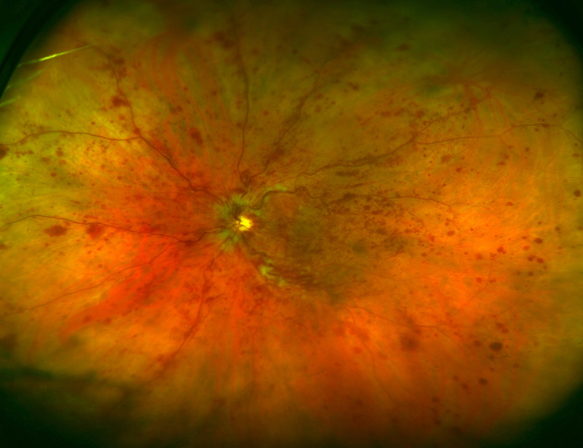 Optomap Retinal Exam by Optos - An Optomap Retinal Exam is unique in that it gives Dr. White a much larger view (200 degrees) of the back of your eye and your retina, than can normally be viewed without dilation. Each Optomap image is as individual as fingerprints or DNA and can provide our doctors with a unique view of your eyes health quickly and comfortably.The Optomap image is captured in less than a second and is immediately available for you and our doctors to review. The exam is quick and painless with no discomfort associated with dilating drops. The image captured by Optomap can aid in detecting common diseases such as diabetes, hypertension, and high cholesterol, and monitor changes in these diseases over time.The Optomap Retinal Exam offers many advantages including: provides an ultra wide field view of the retina, comfortable and quick image capture, non-invasive, helps you understand your eye health, provides permanent records for future comparison, and patient can resume normal activities immediately.