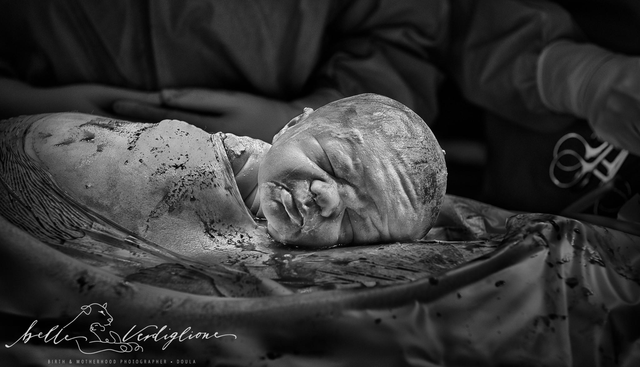 Gentle Caesarean Birth_Belle Verdiglione Photography_WM.jpg