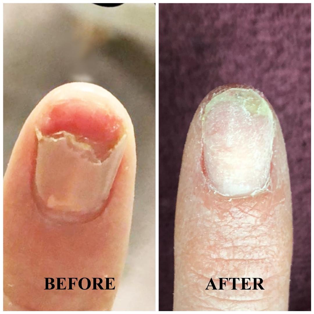 4-Week Fingernail Growth